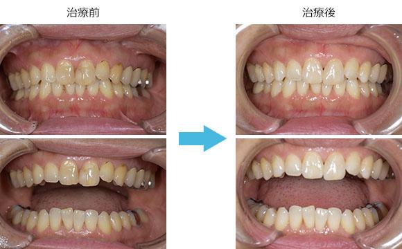 で 虫歯 治す 自力 虫歯を自分で治す方法【虫歯や歯周病は自然治癒する?】